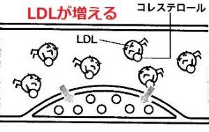 LDLコレステロールが血液中に増えると
