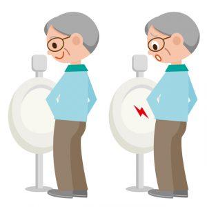 足の付け根や睾丸らに違和感、頻尿で心配な男性
