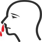 病気や薬が原因の鼻血と5分で止血するキーゼルバッハ部位